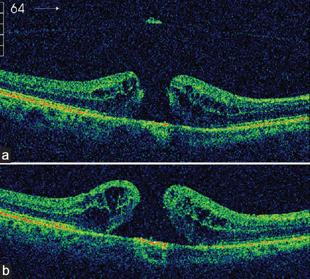 vitrectomy for idiopathic macular hole outcomes and complications
