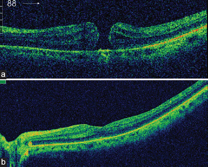 Vitrectomy for idiopathic macular hole: outcomes and