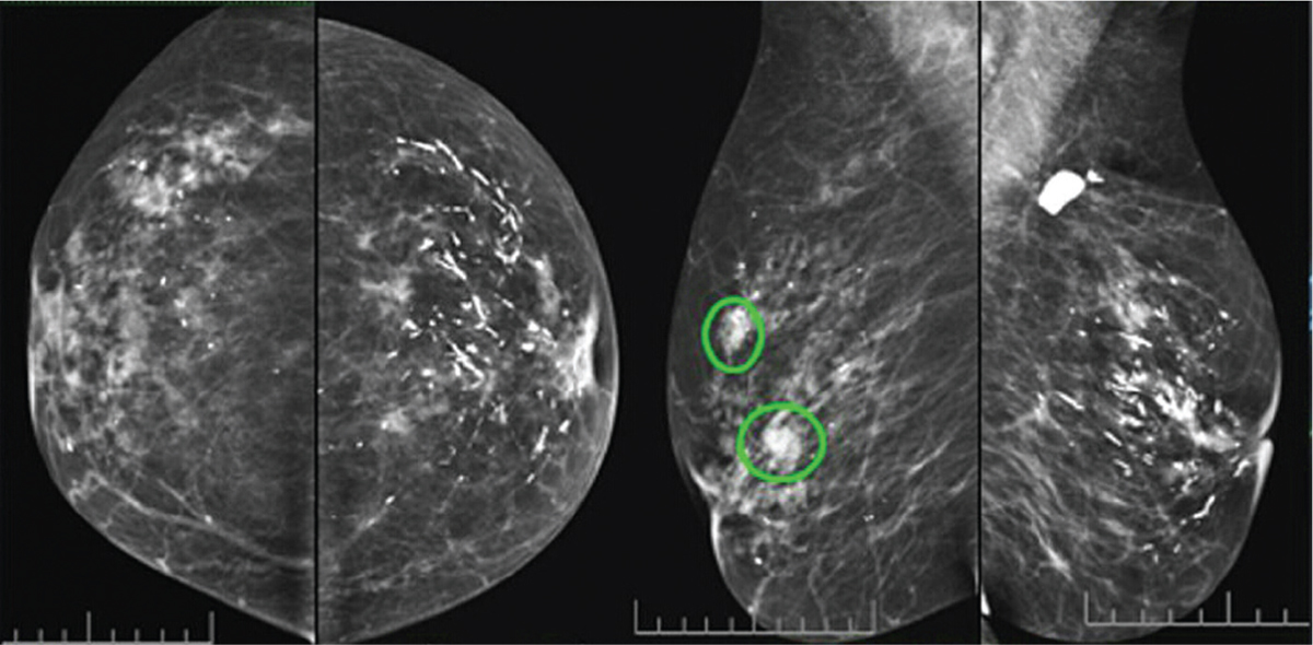 Figure 1 Mammography shows a heterogeneous right breast, BIRADS 0 calcified  scar of the left breast, BIRADS 2. BIRADS, Breast Imaging Reporting and  Data ...