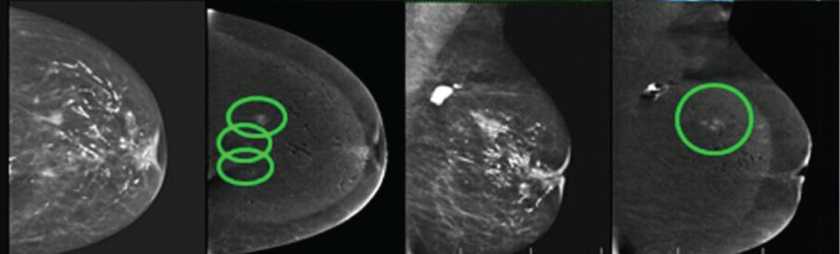Contrast-enhanced spectral mammography versus magnetic resonance